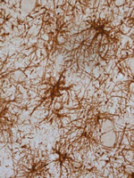 "Reactive glial cells in a parkinsonian patient brain. These cells are indicative of typical neuroinflammation occured during Parkinson""™s disease"