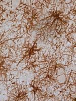 Células gliales reactivas, en cerebro de paciente parkinsoniano, Estas células son un indicio de la neuroinflamación que se produce en la enfermedad de Parkinson
