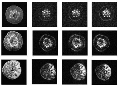 Imagen de resonancia magnética de manzanas