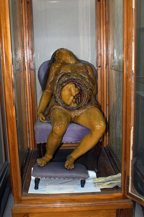 Museo de Anatomía «Javier Puerta» Fotografía 5