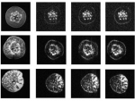 An apple magnetic resonance imaging