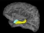 Imagen cerebral en la que aparecen coloreadas la amígdala (azul) y el hipocampo (amarillo). / Stephan Moratti.